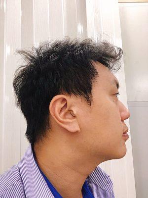 耳寶耳內型助聽器